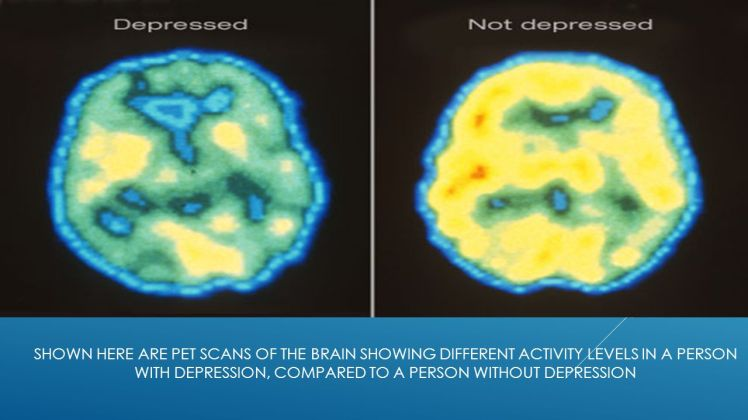 Shown+here+are+PET+scans+of+the+brain+showing+different+activity+levels+in+a+person+with+depression,+compared+to+a+person+without+depression